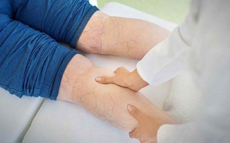 درمان واریس با فیزیوتراپی