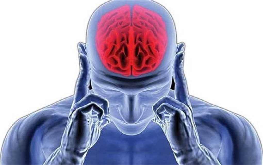 دانشگاه علوم پزشکی تهران: سکته مغزی از عوارض کرونا است