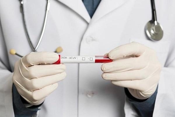 توضیحات موسسه ملی تحقیقات سلامت درباره تست کرونا و احتمال درستی آن
