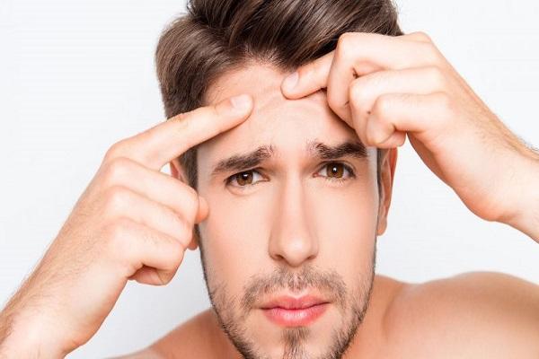با انواع جوش صورت و راههای خلاص شدن از شر آنها آشنا شوید!
