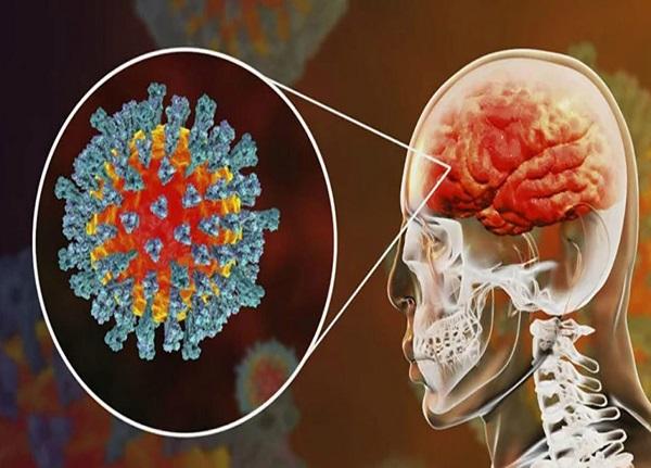 تاثیر ویروس کرونا بر مغز | کرونا مغز را ۱۰ سال پیرتر میکند + کاهش ضریب هوشی