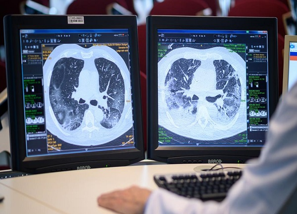 چطور بفهمیم ریههایمان درگیر کرونا شده ؟