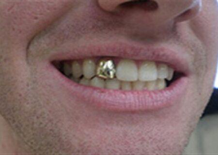 دستگیری دزدِ دندانِ طلای مردگان