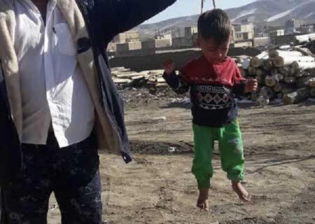 تصویر تلخ کودک آزاری که در اینستاگرام پربازدید شد!