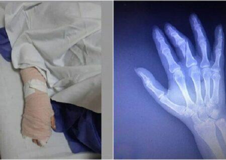 ماجرای شکستن دست خبرنگار به دلیل تهیه گزارش از نحوه واکسیناسیون