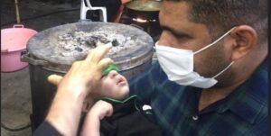 معجزهی شفای کودک نابینا در موکب اطراف حرم امام حسین !